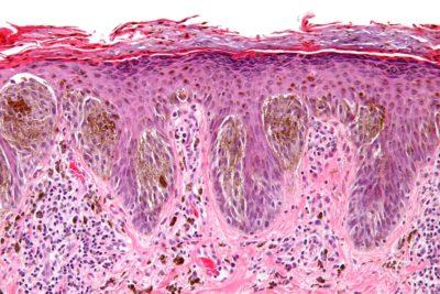 Digital Histopathology of the Skin